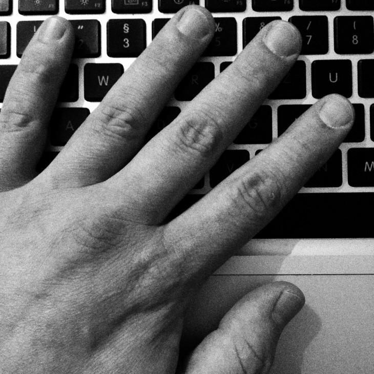 Meine linke Hand. Fotografiert mit rechts.